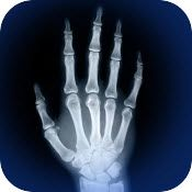medical skeletal anatomy 3d quiz and reference